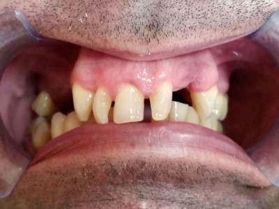 Teeth restoration using metal-ceramic crowns