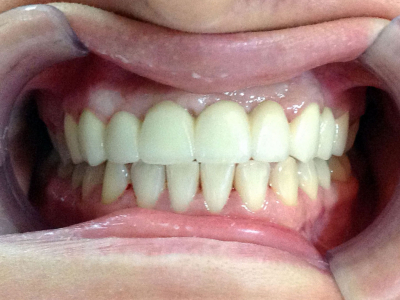 Teeth restoration through surgical gum lift and zirconia-based crowns
