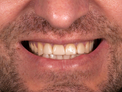 Frontal teeth restoration using ceramic facets