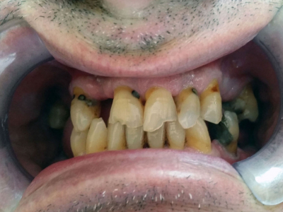 Frontal teeth restoration using metal-ceramic crowns and implants