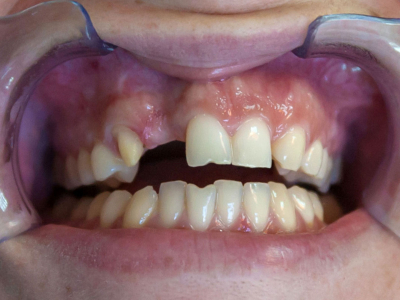 Frontal teeth restoration using ceramic crowns, ceramic veneers and connective tissue transplantation