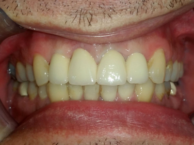 Frontal teeth restoration using ceramic crowns