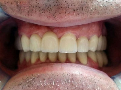 Restoration of teeth in the upper and lower jaw using zirconia-based crowns, metal-ceramic crowns and implants