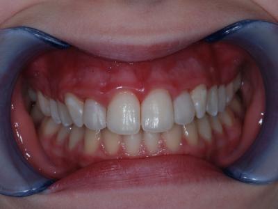 Diastema correction
