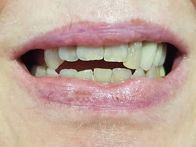 Sanacija gornje vilice metalokeramičkim krunicama i implantatom